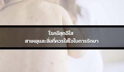 โรคอีสุกอีใส สาเหตุและสิ่งที่ควรใส่ใจในการรักษา